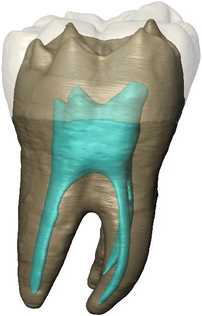 Figure 1. Rendu virtuel de la molaire NHMUK PA EM 3869 du site de Shukbah, identifiée comme néandertalienne (crédits C. Zanolli, NMH London)